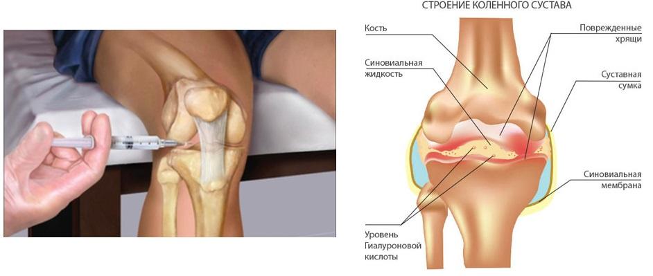 лечение коленные суставы в алматы