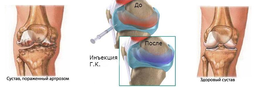 оперативные лечение варусной деформации локтевого сустава