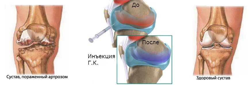 Кислоты суставов ванночки при артрозе лучезапястного сустава